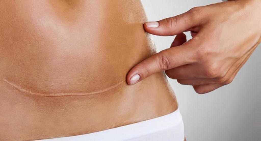 Caderno Mulher - Cicatriz de parto Cesariana pode provocar dor lombar